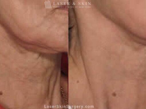 Fraxel laser used to rejuvenate the skin on the neck