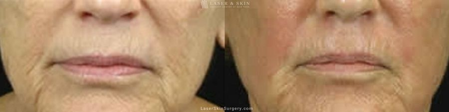 Fraxel Laser for Fine Lines and Wrinkles around the Mouth