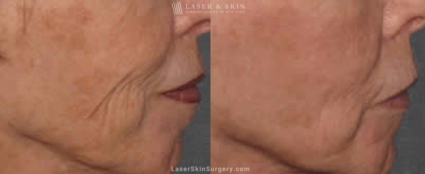 Fraxel Re:pair Skin laxity before and after