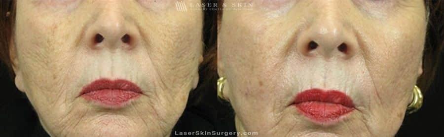 Fraxel Laser for Mouth Wrinkles