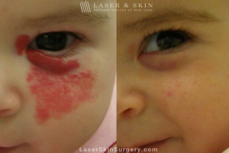 Laser to remove hemangioma from around infant's eye