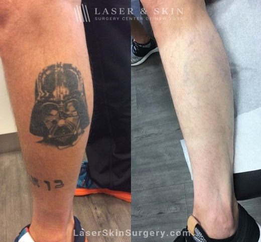 Lasers used to remove tattoo from patient's leg