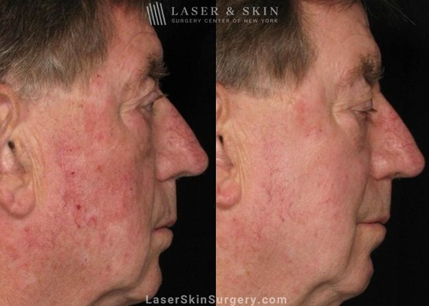 facial veins before laser treatment
