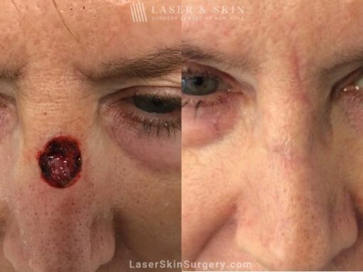 Mohs Surgery to Treat Skin Cancer