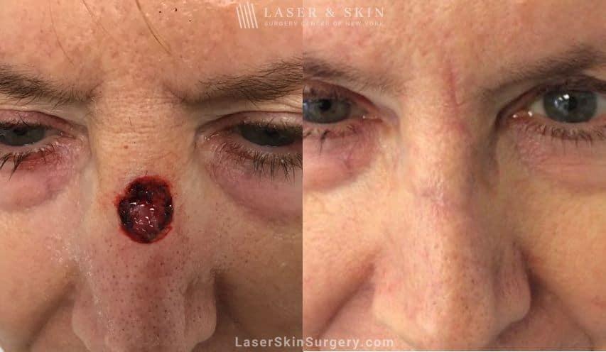 Mohs Skin Cancer Surgery New York Ny Laser Center
