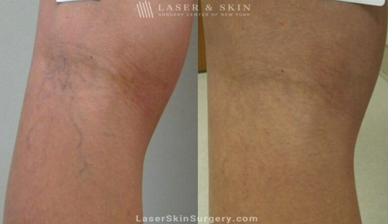 Sclerotherapy to Remove Leg Veins