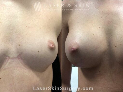 Breast Implants for Augmentation