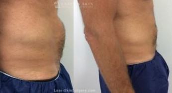 coolsculpting back fat treatment new york
