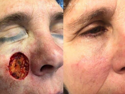 Mohs Closure for Cheek Surgery