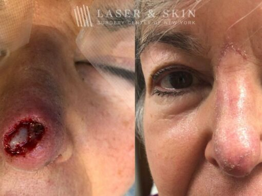 Mohs Closure for Nose Surgery