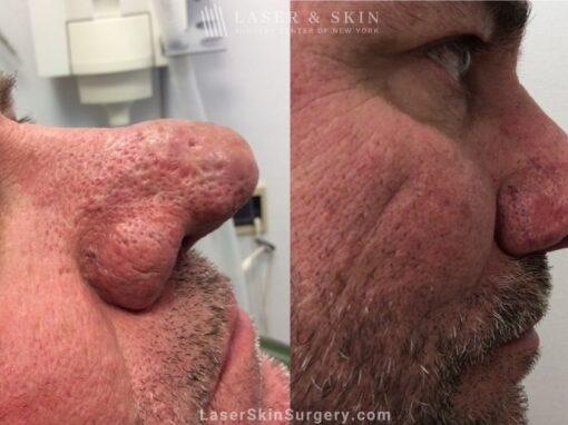 Laser Treatment for Rhinophyma