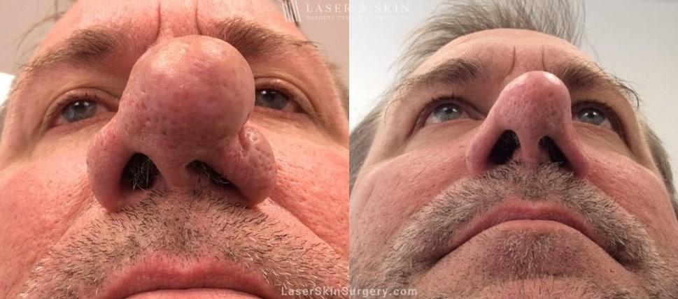 Rhinophyma Nose Treatment New York Ny Laser Center