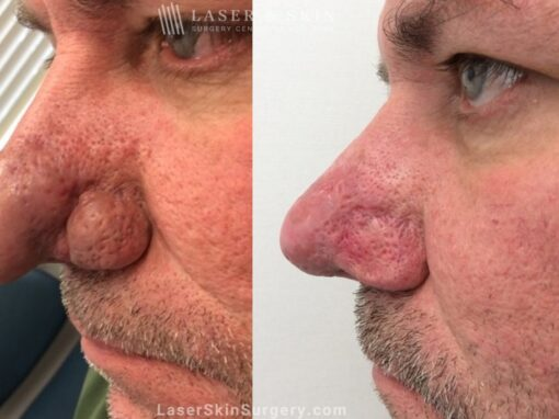 Laser Treatment for Rhinophyma