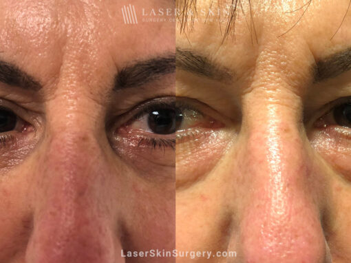Lower Blepharoplasty to Refresh Eyes