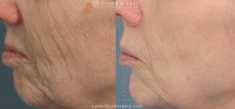 Fraxel Laser for Facial Wrinkles
