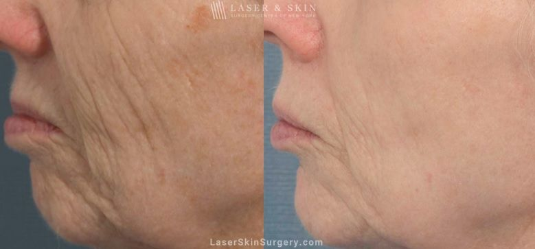 Fraxel Laser to reduce the appearance of wrinkles around the nose and mouth