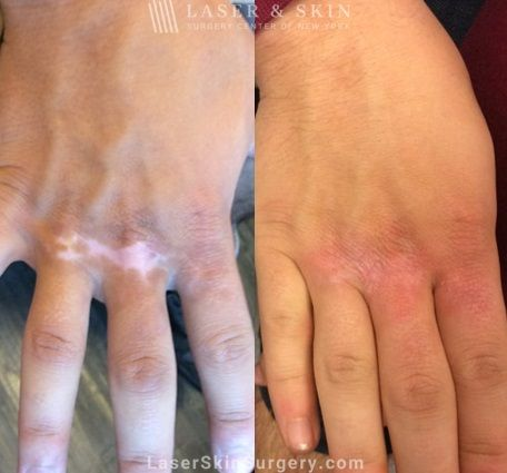 Laser Treatment for Hypopigmentation