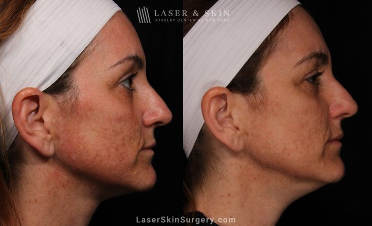 skin tightening treatment NYC, NY