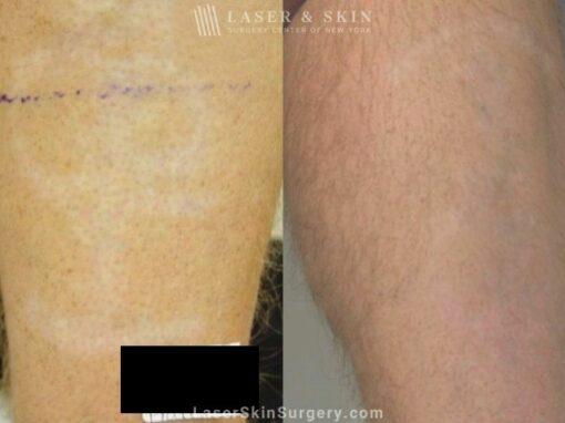 Laser Treatment to Remove Purple Tattoo