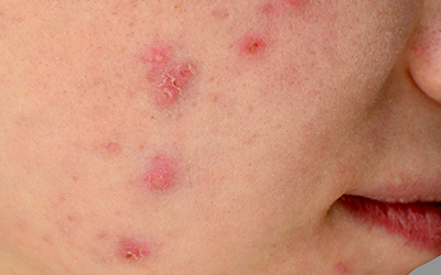 The Ultimate Guide to Treating Cystic Acne, featuring Dr. Anolik at HelloGiggles