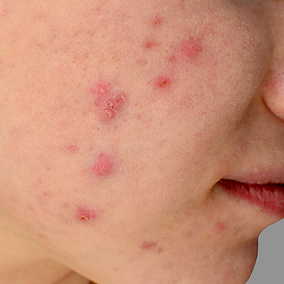 Acne after laser treatment