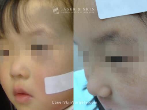 Laser Treatment for Nevus of Ota