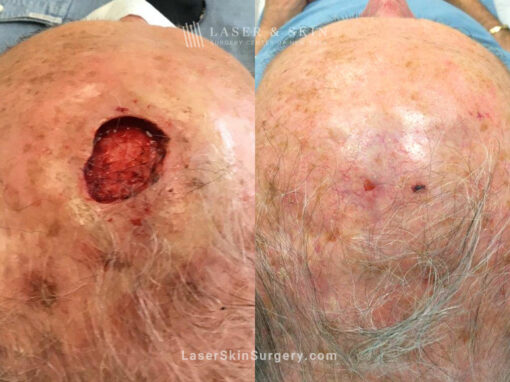 Mohs Surgery for Skin Cancer on the Scalp