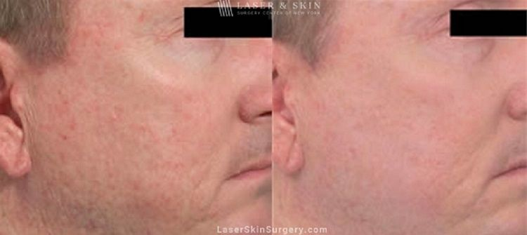 acne scar treatment before and after in new york