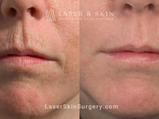 Fractional laser used to treat perioral lines and rejuvenate skin around the mouth