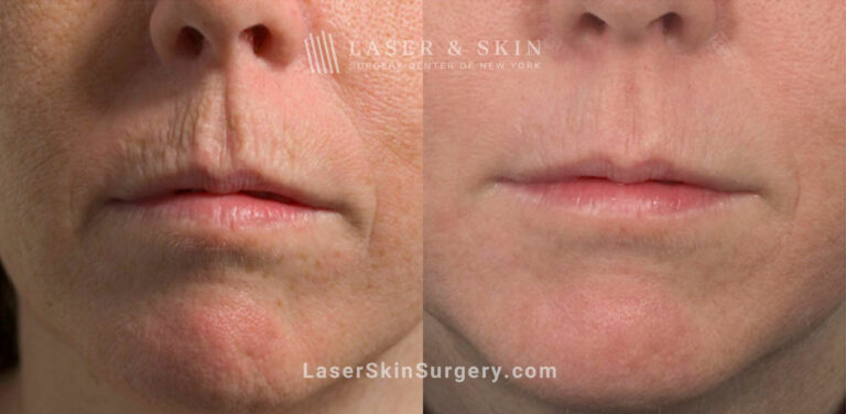 Fractional Laser to Rejuvenate Skin around the Mouth