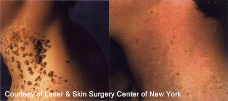 Laser Treatment for Epidermal Nevus