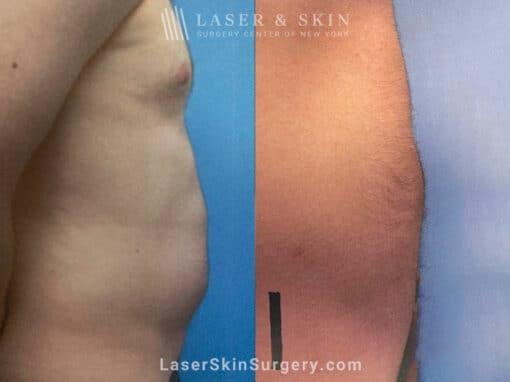 Liposuction to Remove Abdominal Fat