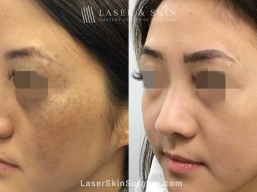 Picosecond laser to treat nevus of ota birthmark