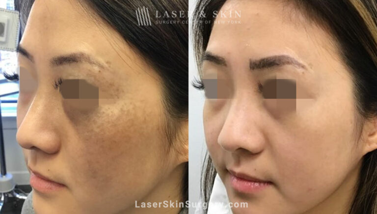 Picosecond laser to treat nevus of ota