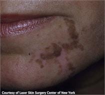 Cafe Au Lait skin treatment NYC, NY