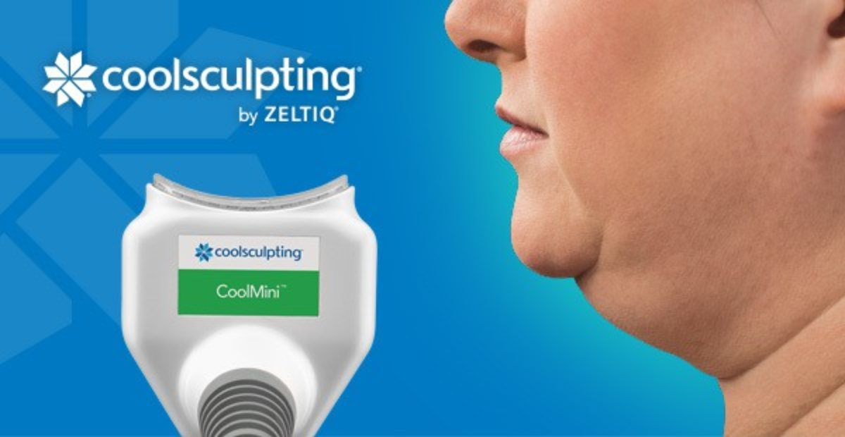 coolsculpting treatment for double chin