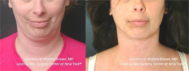 double chin treatment in new york