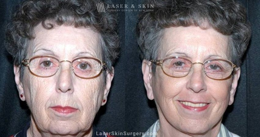 facial plastic surgery for wrinkles in new york