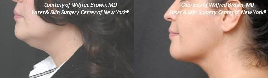 liposculpture double chin treatment in new york