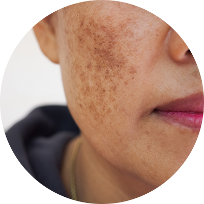 melasma dermatology treatments in new york