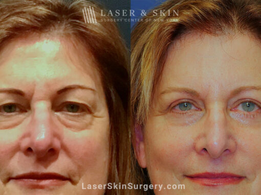 Blepharoplasty to Refresh Eyes