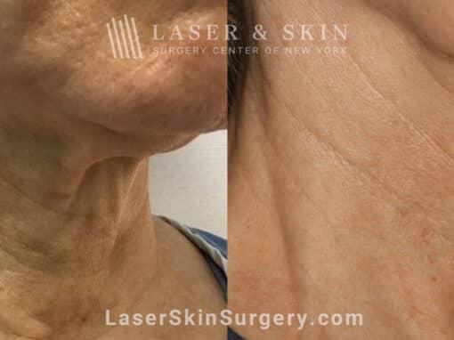 Genius Microneedling for Skin Rejuvenation
