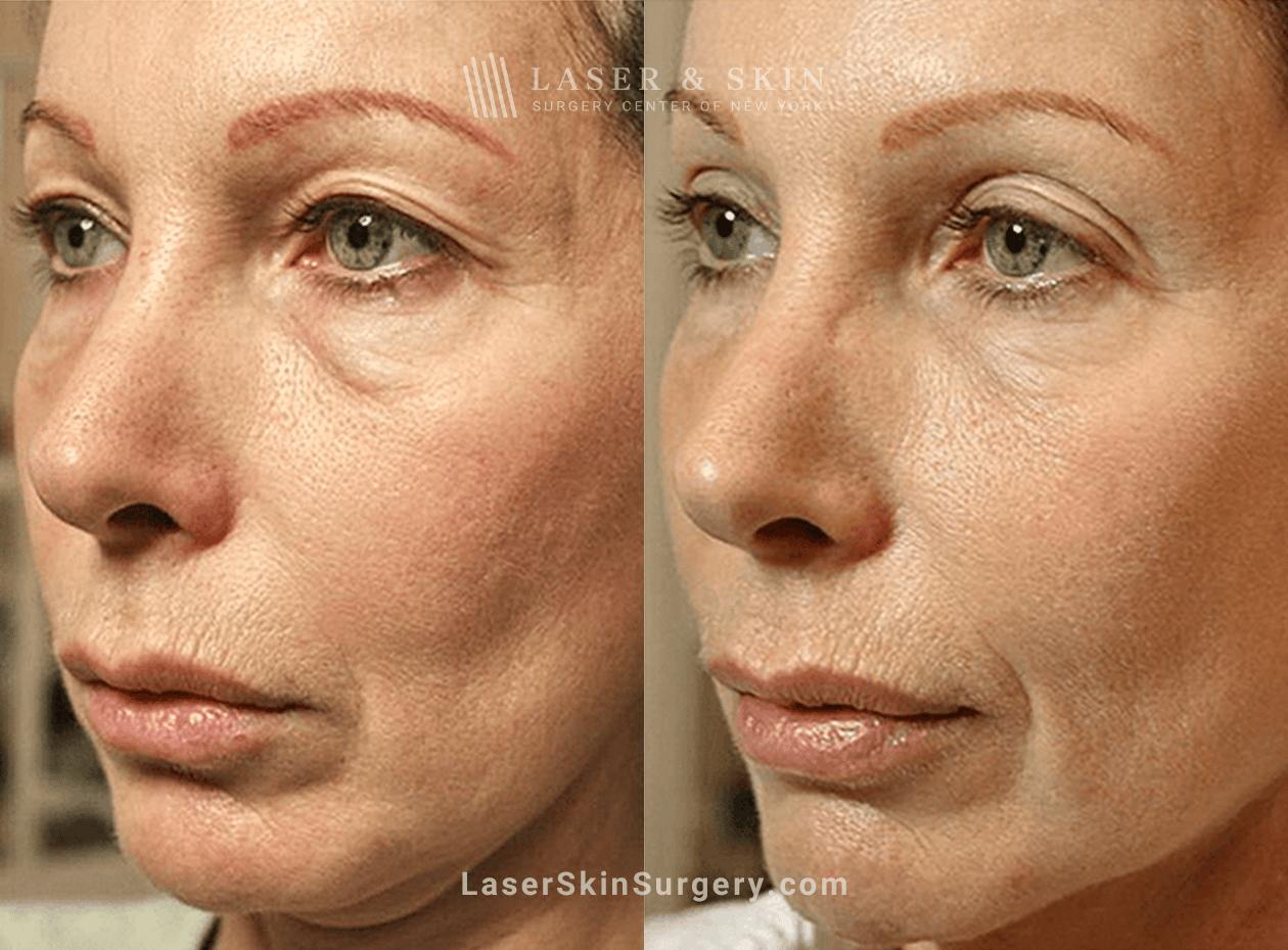 Thermage skin tighening for neck rejuvenation in NYC, NY