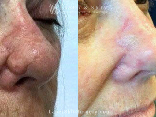ThermiSmooth and Sciton Laser Resurfacing for Nose