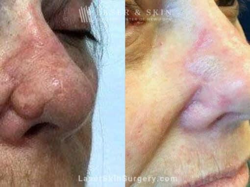 Erbium and Sciton Laser Resurfacing for Nose