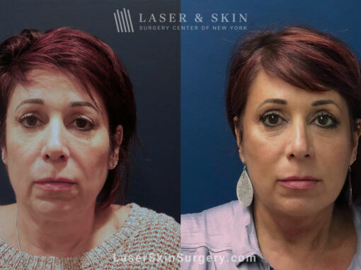 ThermiSmooth for Skin Rejuvenation