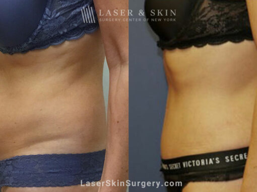 Tummy Tuck to Trim the Midsection