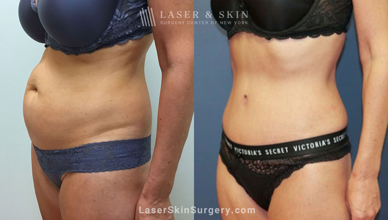 Also known as abdominoplasty, a tummy tuck is a surgical procedure that removes excess fat and skin, helping to restore weakened or separated muscles.