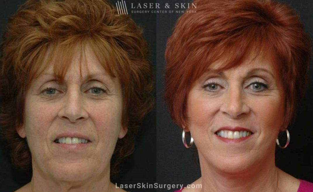 surgical neck rejuvenation procedures in NYC