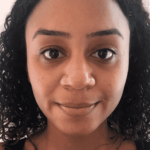 I'm a Black Woman Who Tried My First Laser Treatment, featuring Dr. Henry at Real Self